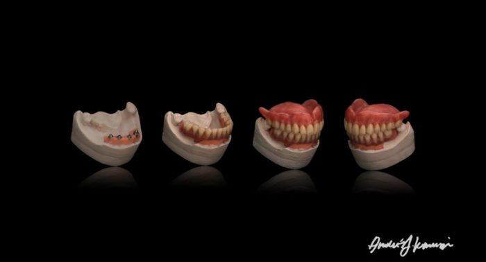 Можно ли на Страстной лечить зубы?