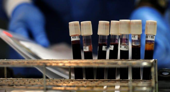 Больница святителя Алексия вместе с горбольницей №52 организовала забор плазмы крови для ковид-пациентов